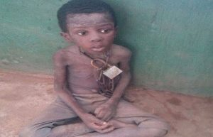 Ogun Adopts Rescued Boy Chained By Pastor Dad