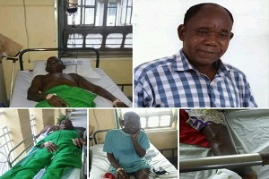 Homeless Veteran Nollywood Actor Tunde Alabi's Leg Amputated